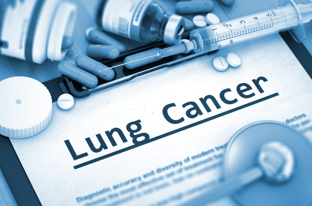 What Types Of Cancers Are Caused By Asbestos Exposure?